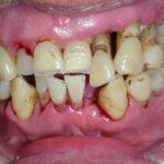 Izbjegnite bolnu i opasnu bolest zubnog mesa